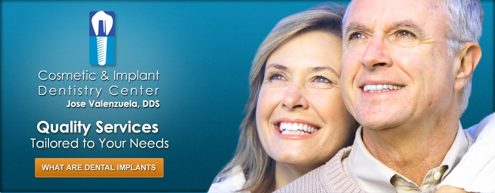 What Are Dental Implants