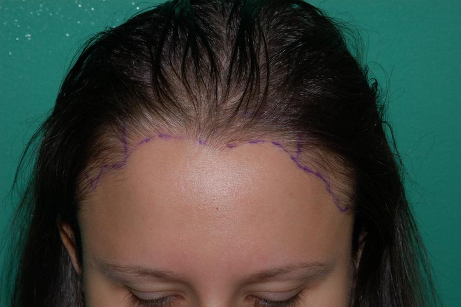 Women S Hair Loss Chicago Gold Coast Milwaukee
