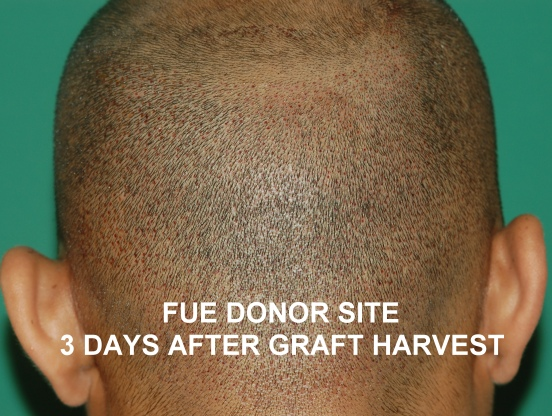 Follicular Unit Extraction Fue Chicago Gold Coast