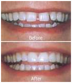 Dental Bonding Example