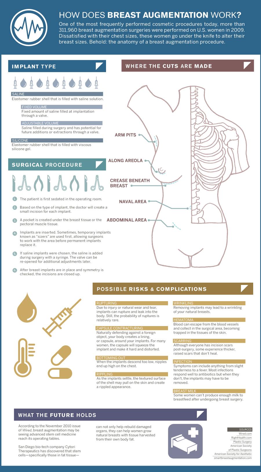 Anatomy of a Boob Job