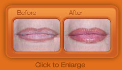 Instant Lip Plumper – Before and After Photo – Case 1