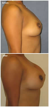 Breast Augmentation by Dr. Jaime Perez