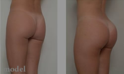 Gluteal Augmentation (gluteal implants)