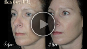 Facial Rejuvenation – BOTOX® Cosmetic