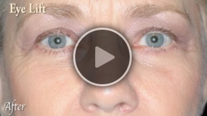 Blepharoplasty – Eyelid Surgery
