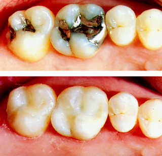 Filings Before and After - Robert Wilkoff, dds.
