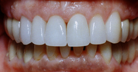 Beautifully white, cosmetically restored teeth that are straight and uniformly white.