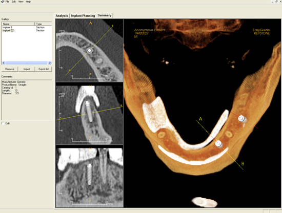 A view of dental implant placement software which analyzes the full jaw and denotes a plan of action for surgical placement.