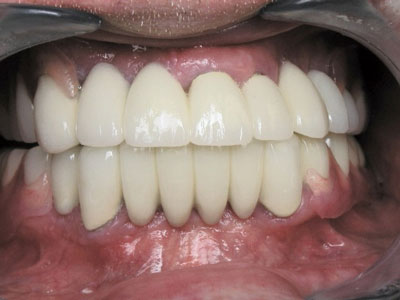 An after shot of a patient's restored mouth with straight, white teeth and great oral health.
