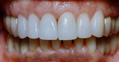 An after shot of a patient whose previously chipped, decayed teeth have been restored to a straight, beautiful façade