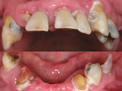 A before shot of a patient with an extremely decayed, misaligned mouth with several teeth missing.