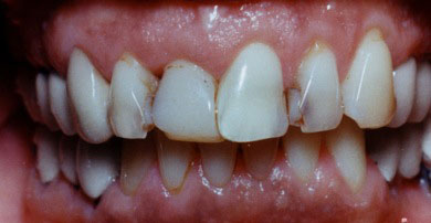 A before shot of a patient with broken, decayed teeth.