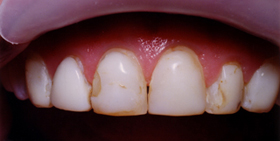 Anterior top teeth with decay, staining, and chips.