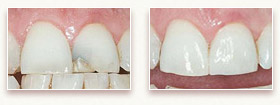 Before and After Photo 1 - Dental Bonding
