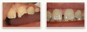 Before and After Photo 2 - Dental Bonding