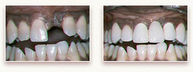 Dental Bridge Before and After Photo