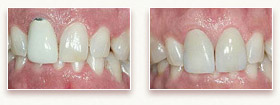 Before and After Photo 1 - Dental Veneers and Porcelain Crowns