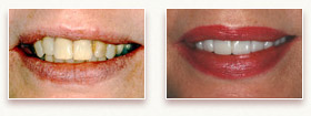 Before and After Photo 2 - Dental Veneers and Porcelain Crowns