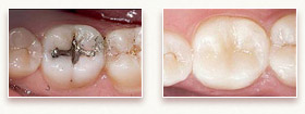 Before and After Photo 1 - Tooth-Colored Fillings