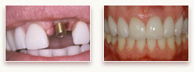 Before and After Photo - Dental Implant
