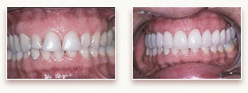 Before and After Photo - Porcelain Dental Veneers