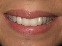 Smile Makeover 2