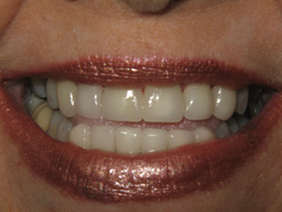 Smile Makeover 16