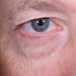 Laser Eyelid Rejuvenation Before 1