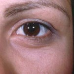 Laser Eyelid Rejuvenation After 2