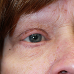 Laser Eyelid Rejuvenation Before 3