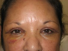 One Day After Laser Eyelid Lift