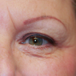 Laser Eyelid Rejuvenation After 4