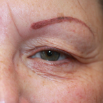 Laser Eyelid Rejuvenation Before 4