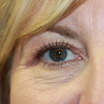 Laser Eyelid Rejuvenation After 7