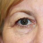 Laser Eyelid Rejuvenation Before 7