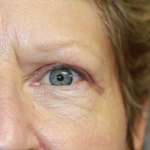 Laser Eyelid Rejuvenation After 8