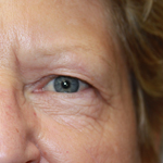 Laser Eyelid Rejuvenation Before 8