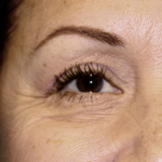 Laser Eyelid Rejuvenation After 9