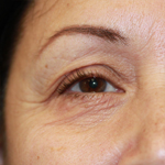 Laser Eyelid Rejuvenation Before 9