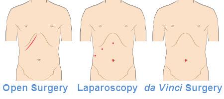 cholecystectomy-incision-comparison-en.jpg