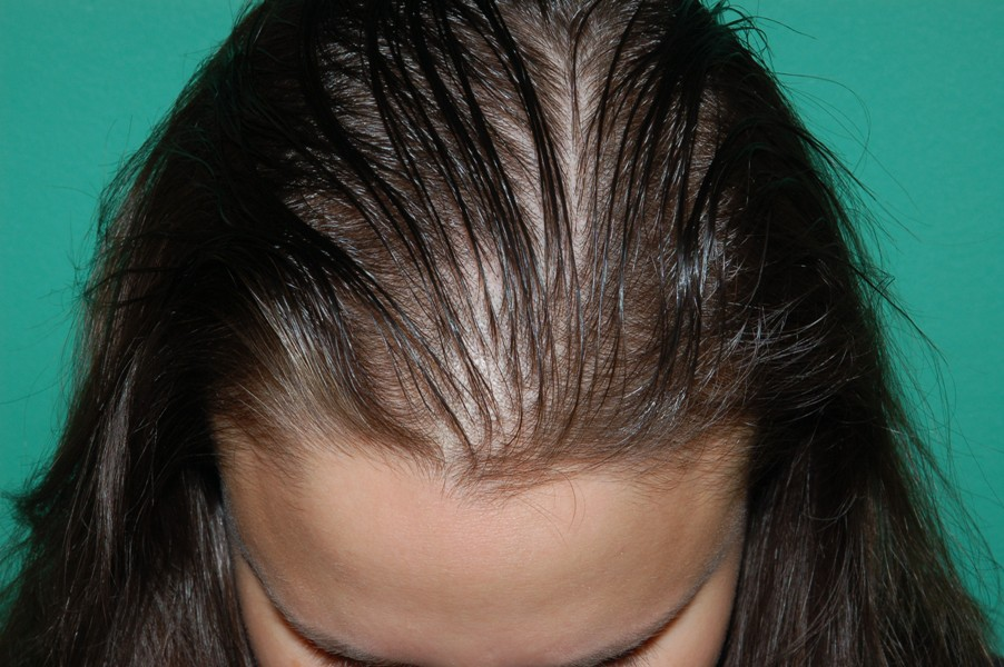 Hair Loss Treatment For Women Chicago Il Chicago Hair Institute