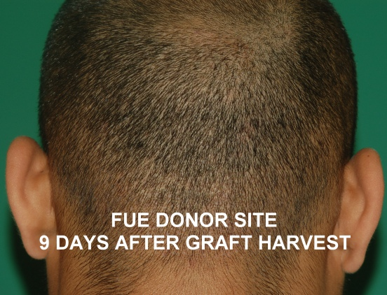 Donor site after FUE