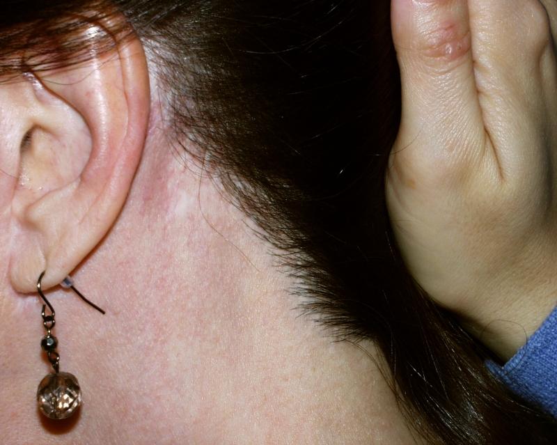 postop_left_hairline.jpg