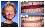 Before and After Photo – TMJ treatment, porcelain veneers, dental implants, porcelain crowns