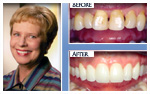 Before and After Photo – Periodontal treatment, teeth whitening, porcelain veneers, porcelain crowns
