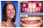 Before and After Photo – Dental implants, porcelain crowns
