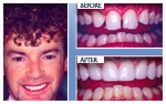 Before and After Photo – Removal of excess gum tissue, teeth whitening, porcelain veneers