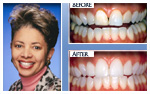 Before and After Photo – teeth whitening, minor gum reshaping, four porcelain veneers