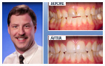 Before and After Photo – teeth whitening, tooth-colored fillings, two porcelain veneers